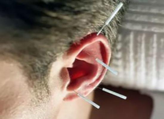 ушна мида с поставени върху нея акупунктурни игли